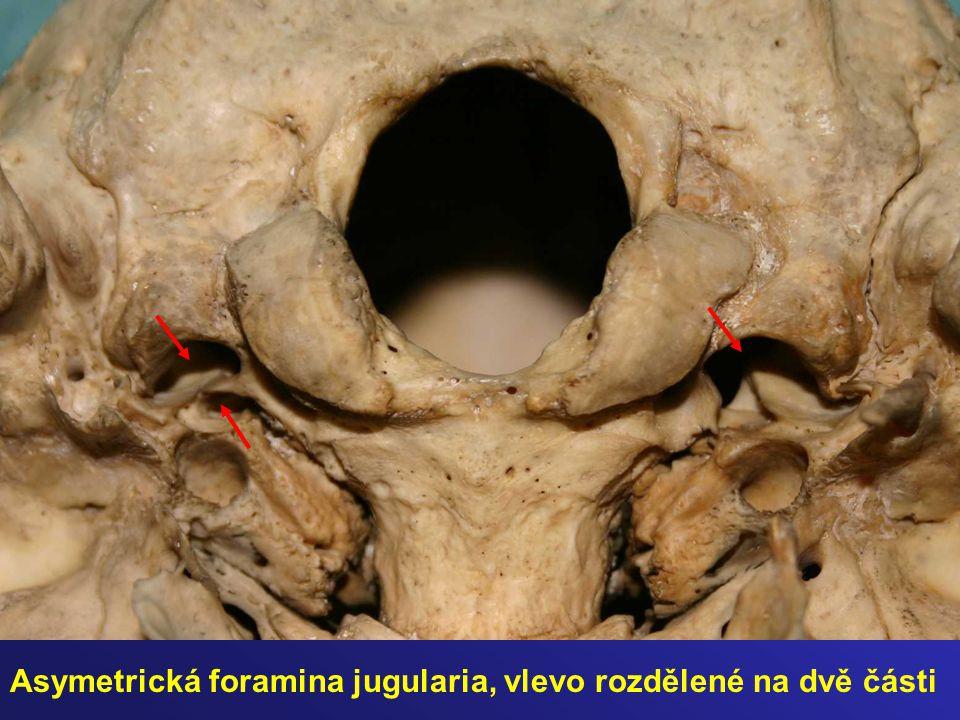 Asymetrická foramina jugularia, vlevo rozdělené na dvě části