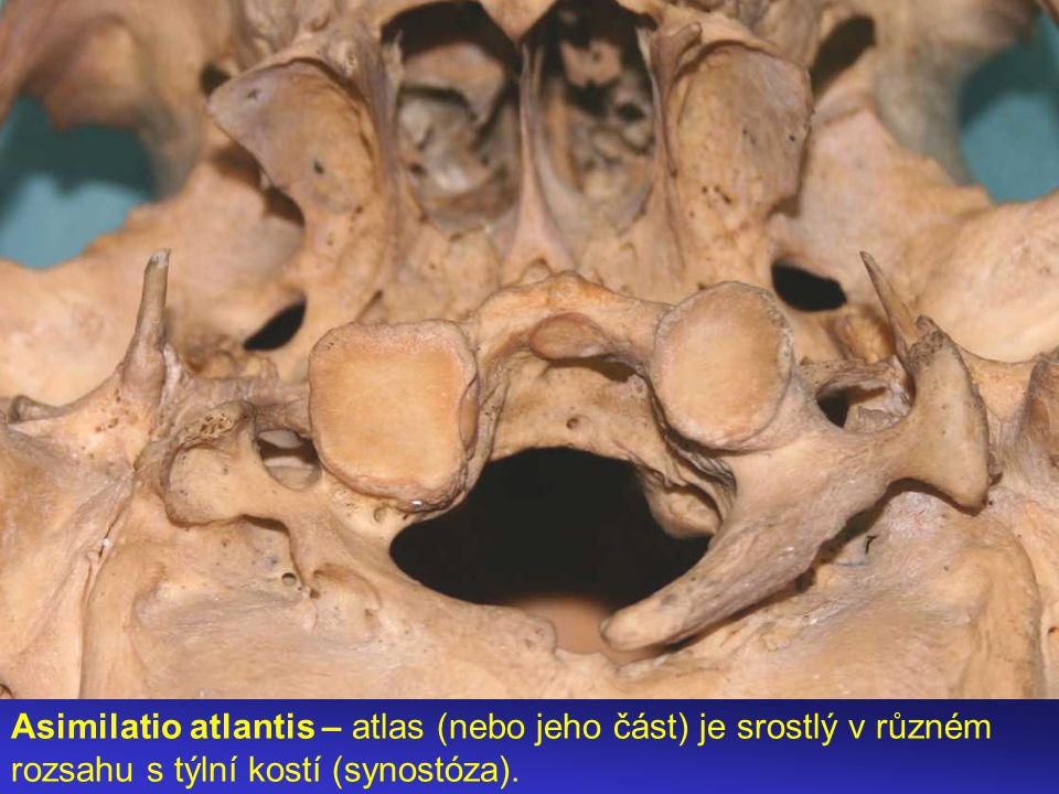 Asimilatio atlantis – atlas (nebo jeho část) je srostlý v různém rozsahu s týlní kostí (synostóza).