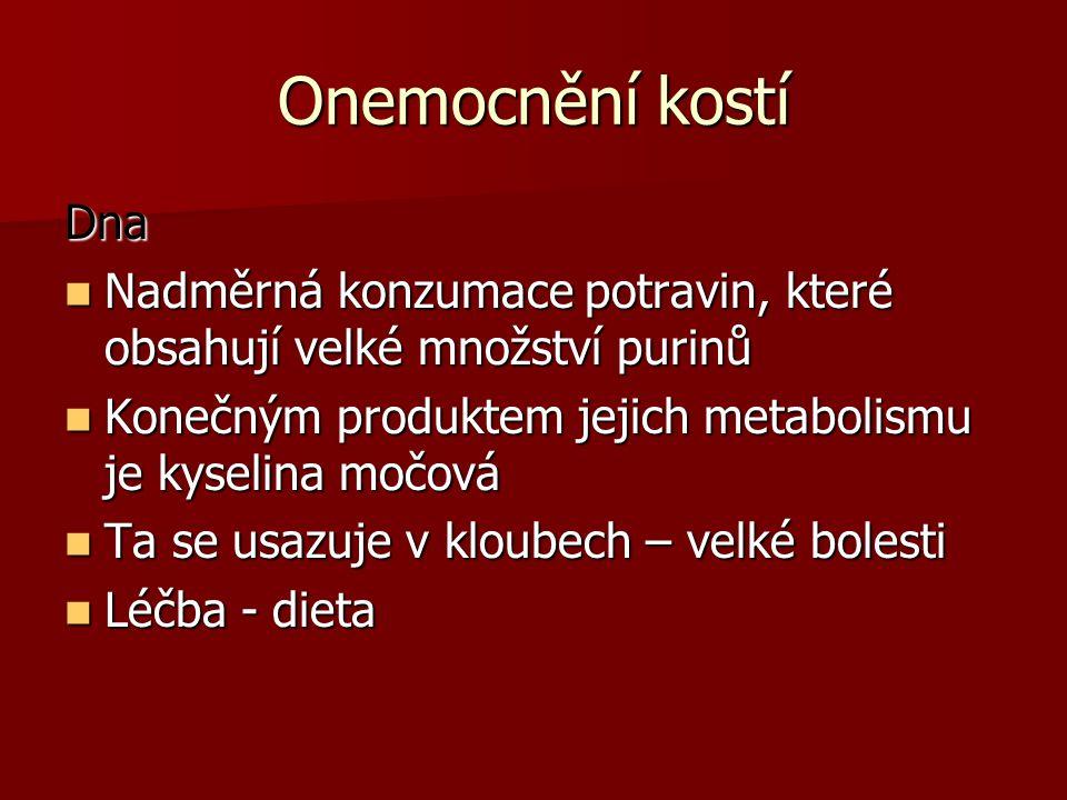 Onemocnění kostí Dna. Nadměrná konzumace potravin, které obsahují velké množství purinů. Konečným produktem jejich metabolismu je kyselina močová.