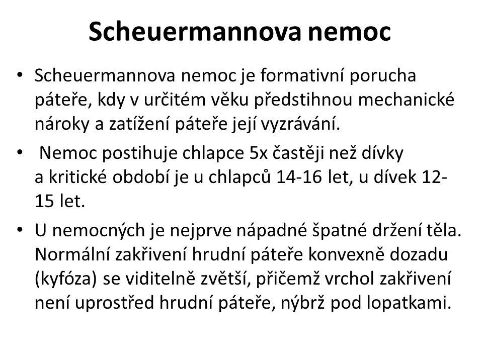 Scheuermannova nemoc