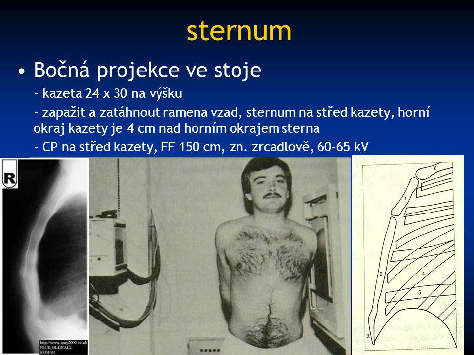 sternum Bočná projekce ve stoje - kazeta 24 x 30 na výšku