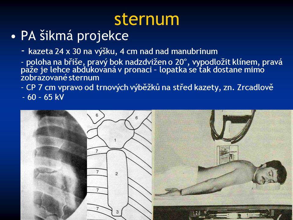 sternum PA šikmá projekce