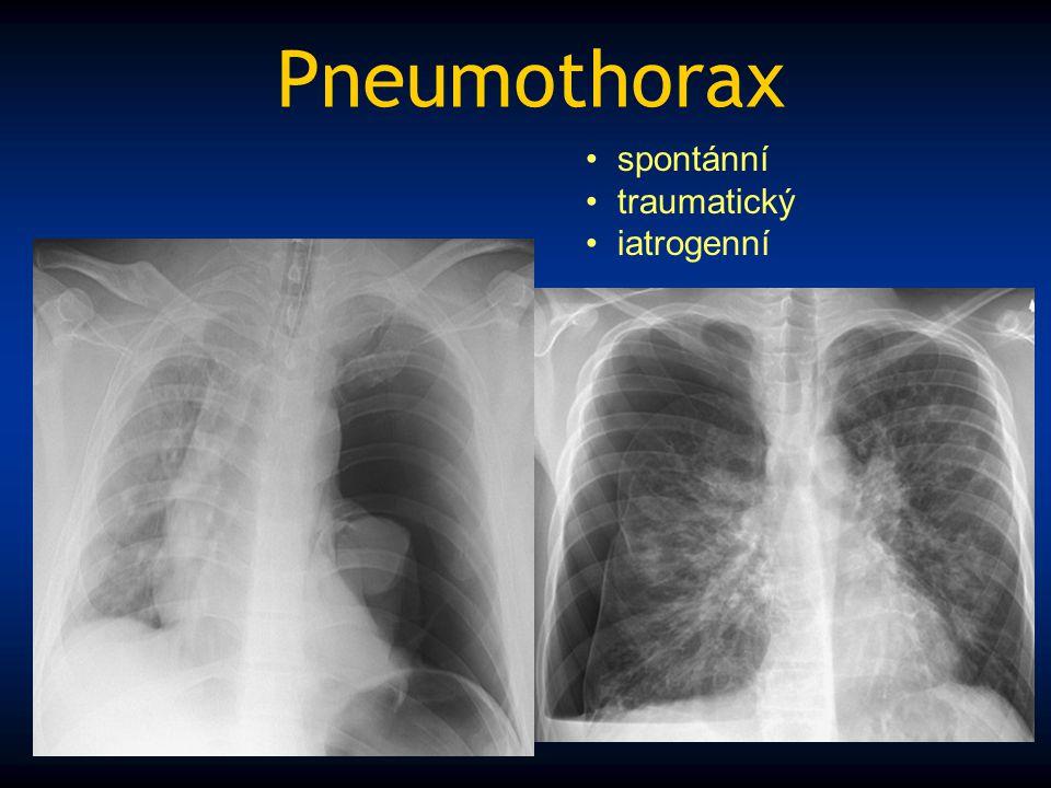 Pneumothorax spontánní traumatický iatrogenní