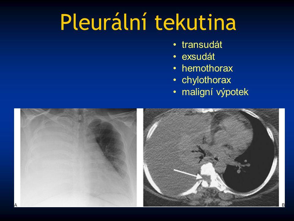 Pleurální tekutina transudát exsudát hemothorax chylothorax