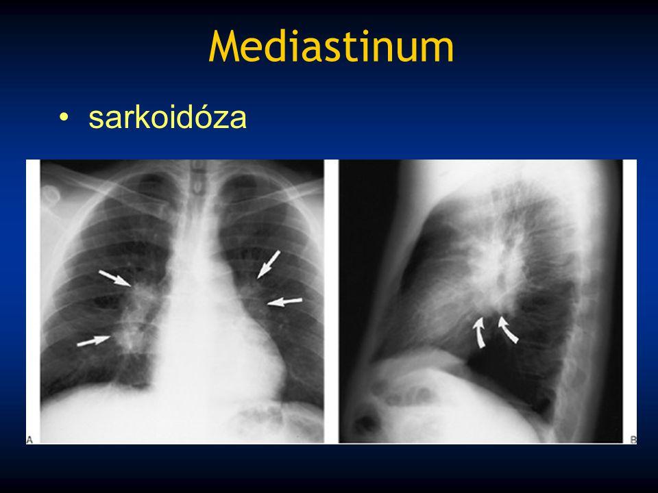 Mediastinum sarkoidóza