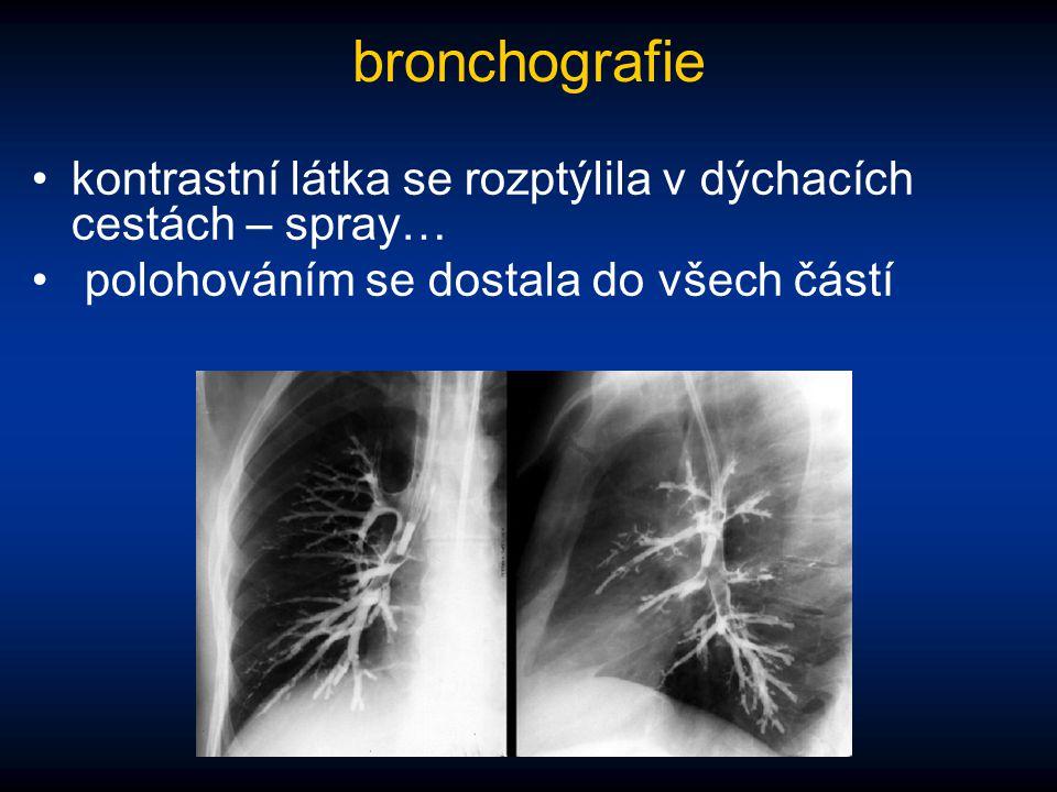 bronchografie kontrastní látka se rozptýlila v dýchacích cestách – spray… polohováním se dostala do všech částí.