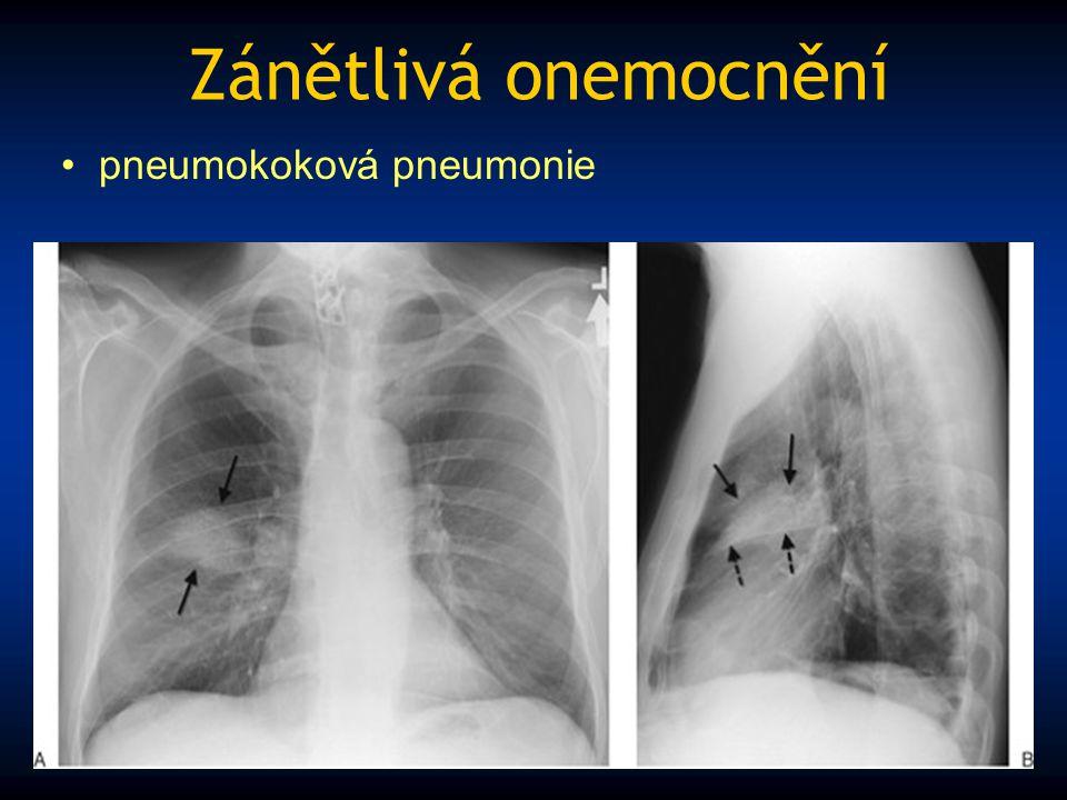 Zánětlivá onemocnění pneumokoková pneumonie
