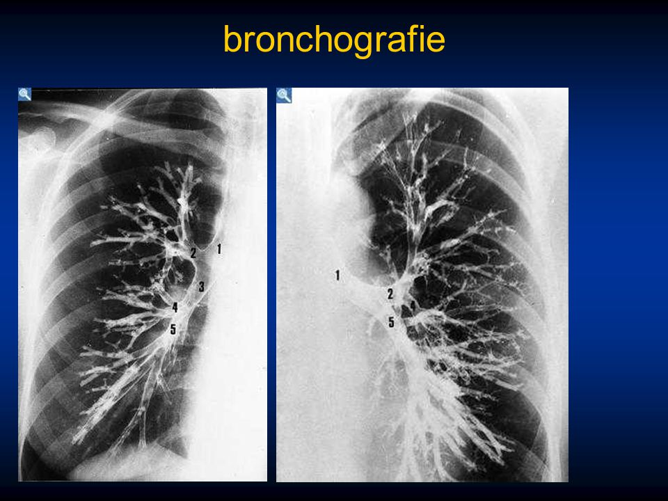 bronchografie