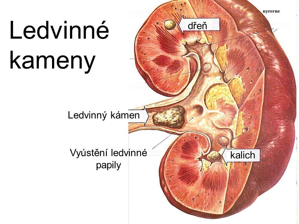 Vyústění ledvinné papily