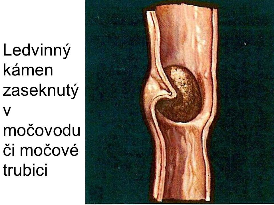 Ledvinný kámen zaseknutý v močovodu či močové trubici