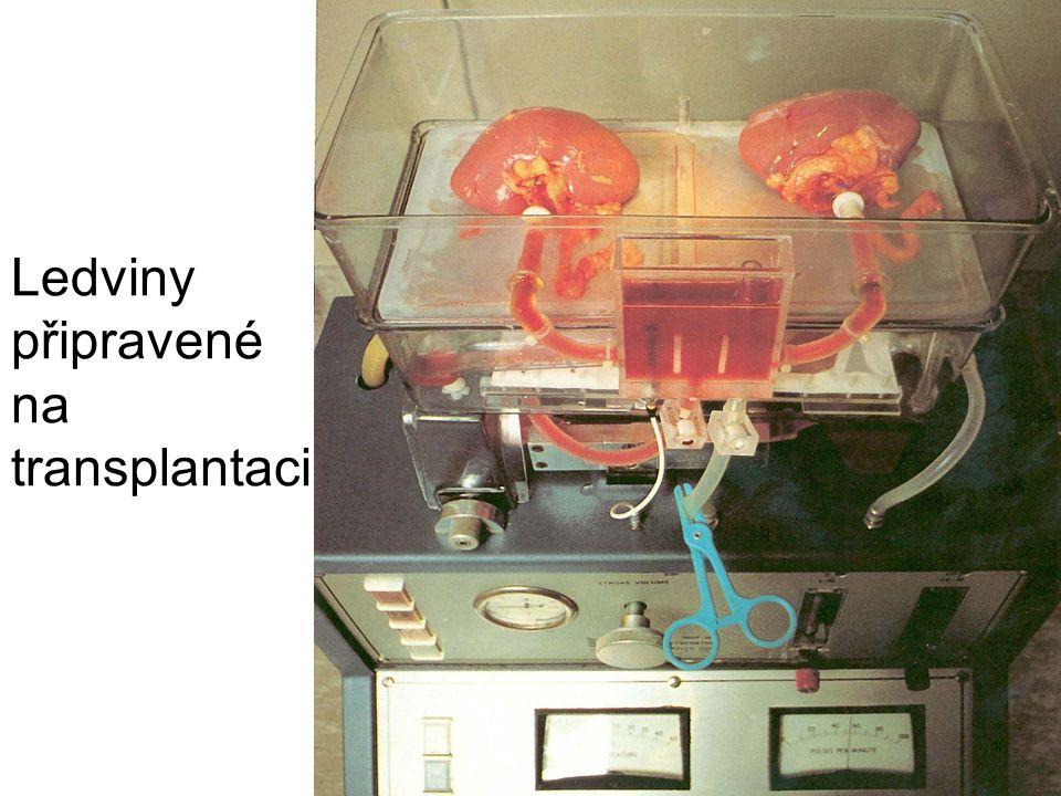 Ledviny připravené na transplantaci