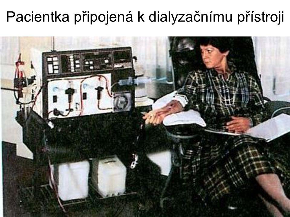 Pacientka připojená k dialyzačnímu přístroji