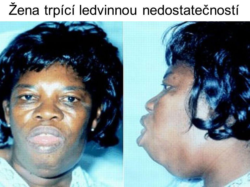 Žena trpící ledvinnou nedostatečností