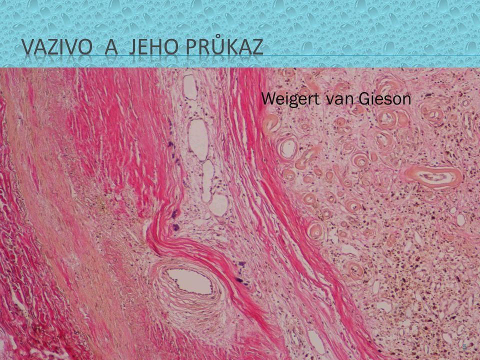 VAZIVO A JEHO PRŮKAZ Weigert van Gieson