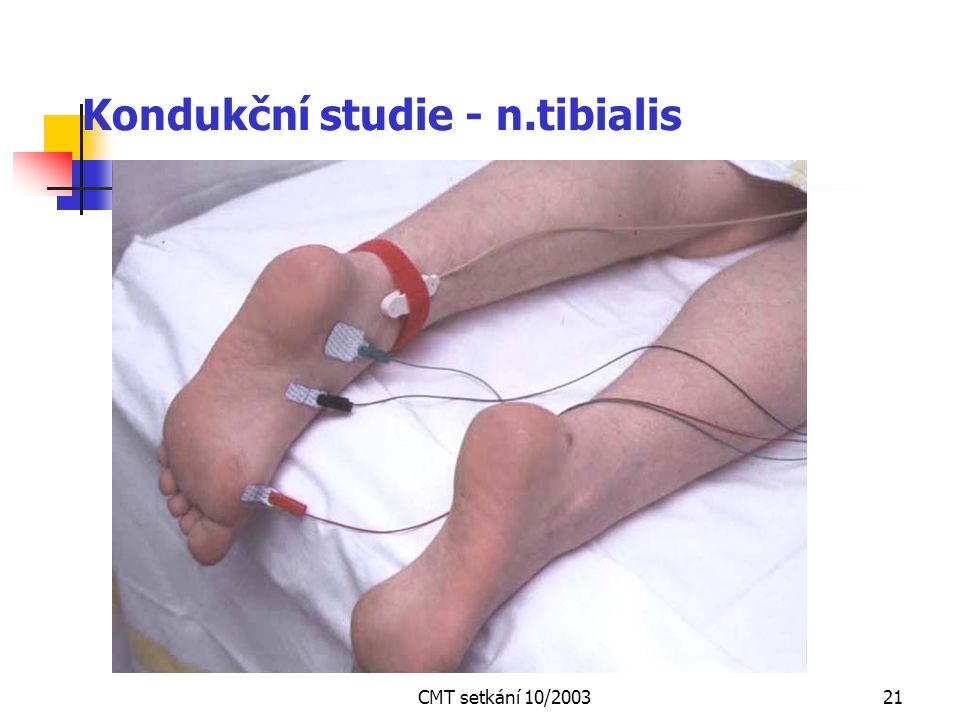 Kondukční studie - n.tibialis