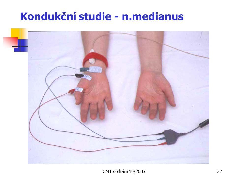 Kondukční studie - n.medianus