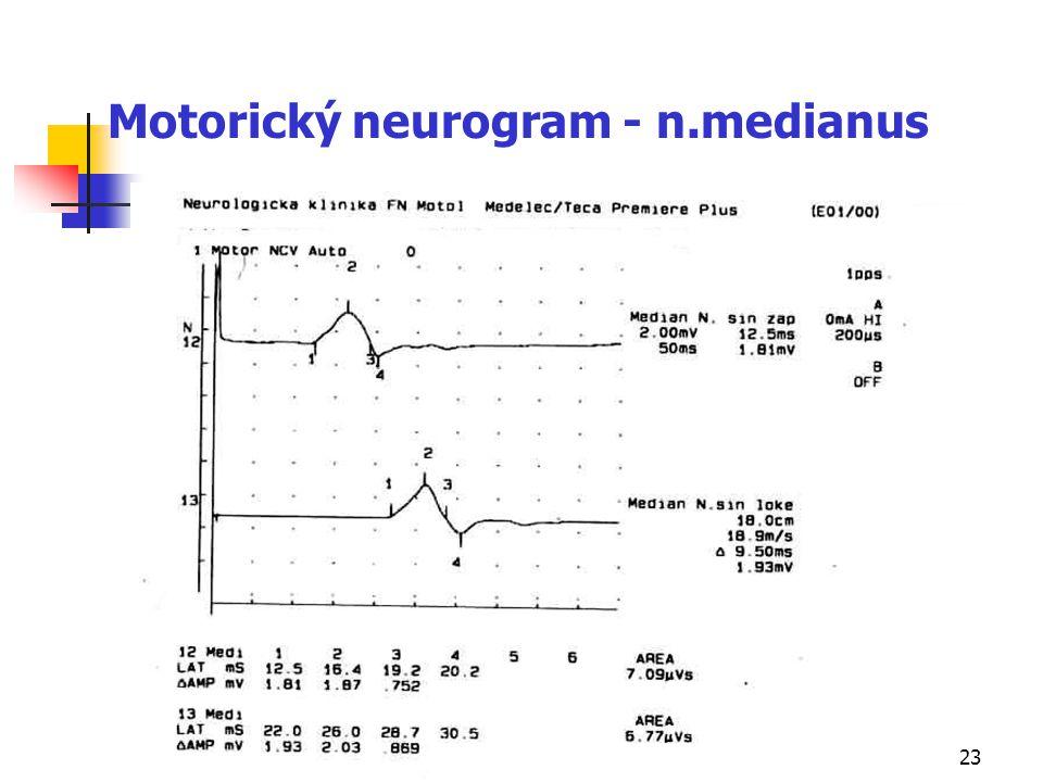 Motorický neurogram - n.medianus
