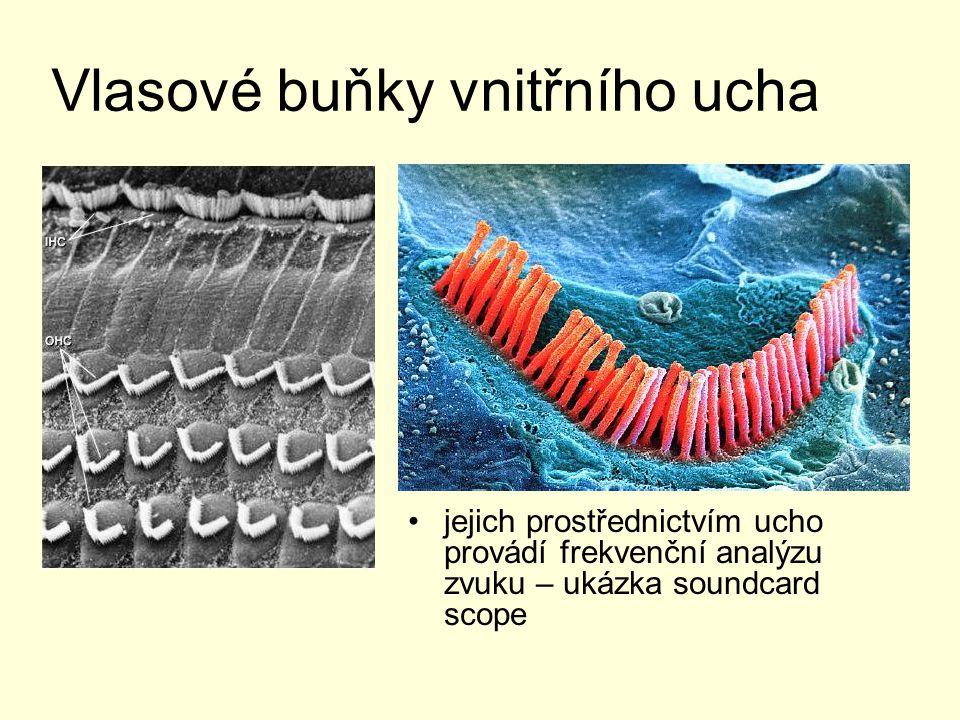Vlasové buňky vnitřního ucha