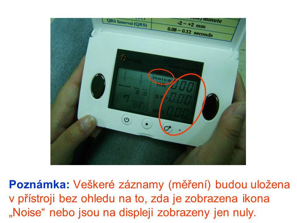 """Poznámka: Veškeré záznamy (měření) budou uložena v přístroji bez ohledu na to, zda je zobrazena ikona """"Noise nebo jsou na displeji zobrazeny jen nuly."""