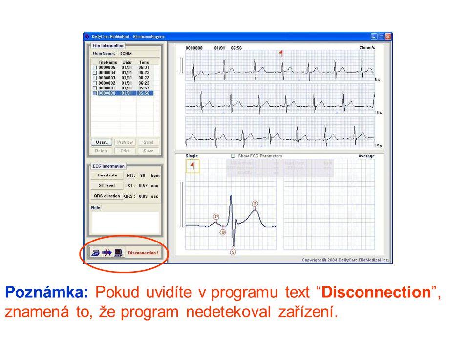 Poznámka: Pokud uvidíte v programu text Disconnection , znamená to, že program nedetekoval zařízení.