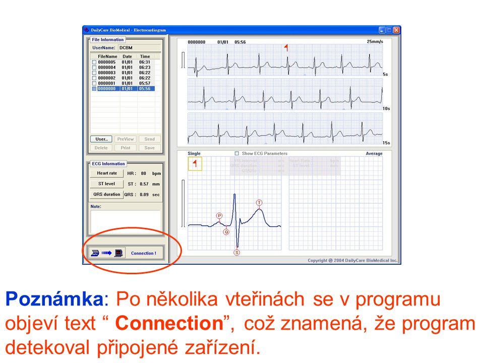 Poznámka: Po několika vteřinách se v programu objeví text Connection , což znamená, že program detekoval připojené zařízení.
