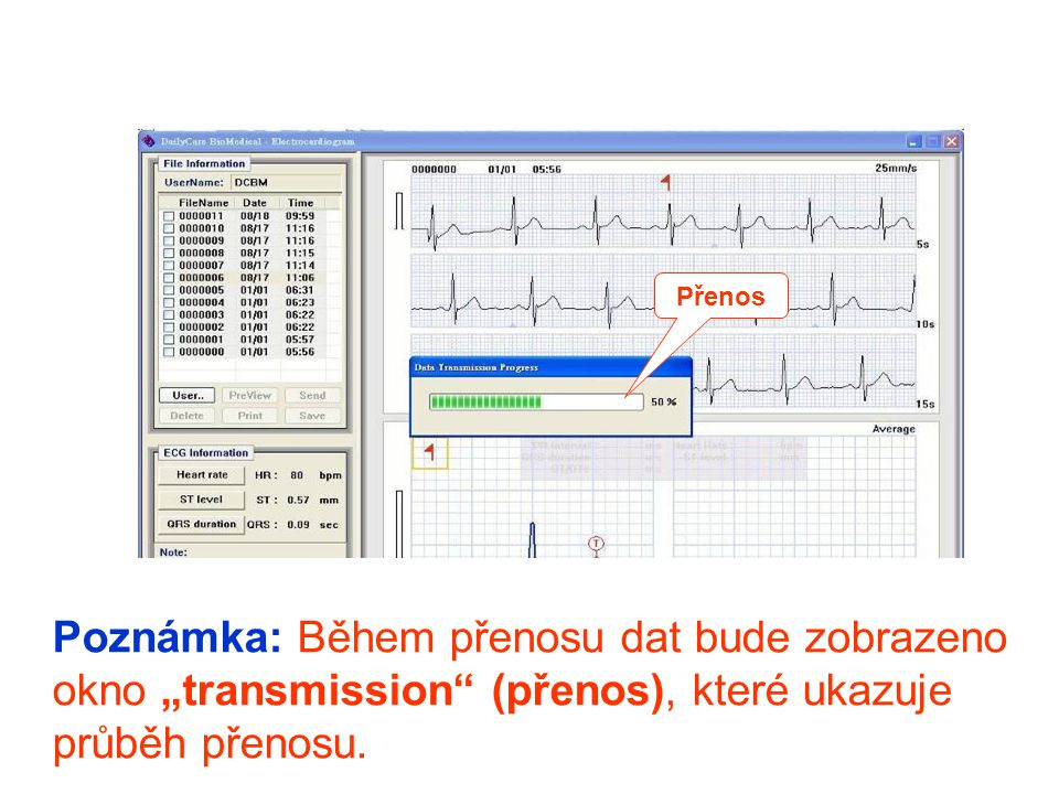 """Přenos Poznámka: Během přenosu dat bude zobrazeno okno """"transmission (přenos), které ukazuje průběh přenosu."""