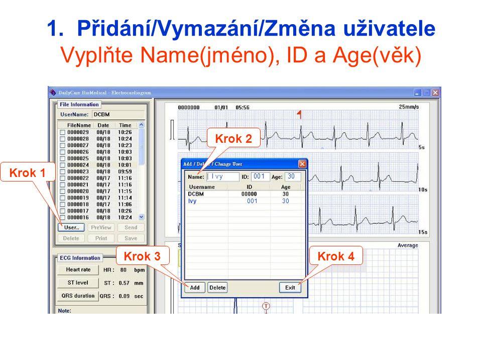 1. Přidání/Vymazání/Změna uživatele Vyplňte Name(jméno), ID a Age(věk)
