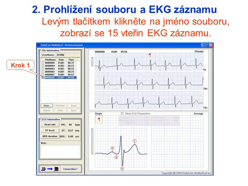 2. Prohlížení souboru a EKG záznamu Levým tlačítkem klikněte na jméno souboru, zobrazí se 15 vteřin EKG záznamu.