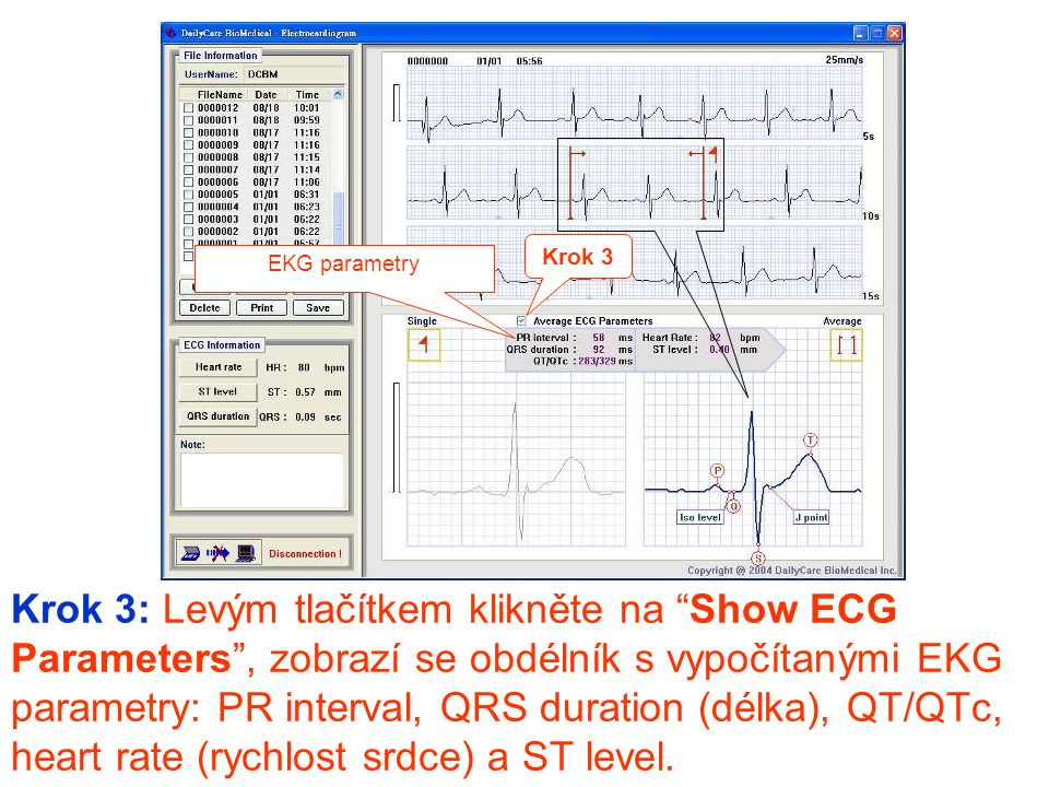 Krok 3 EKG parametry.