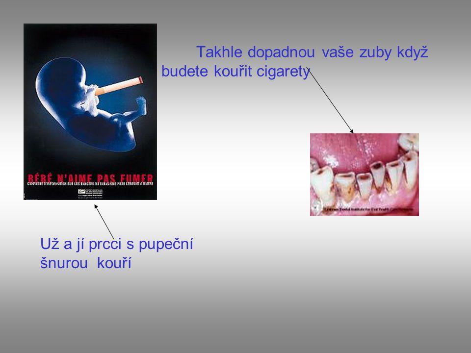 Takhle dopadnou vaše zuby když budete kouřit cigarety