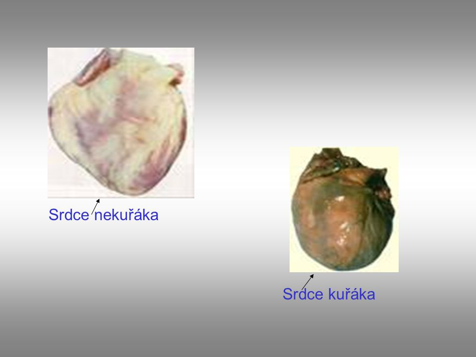 Srdce nekuřáka Srdce kuřáka