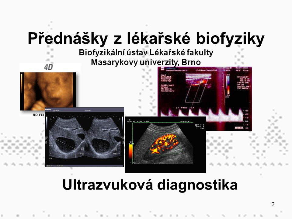 Ultrazvuková diagnostika