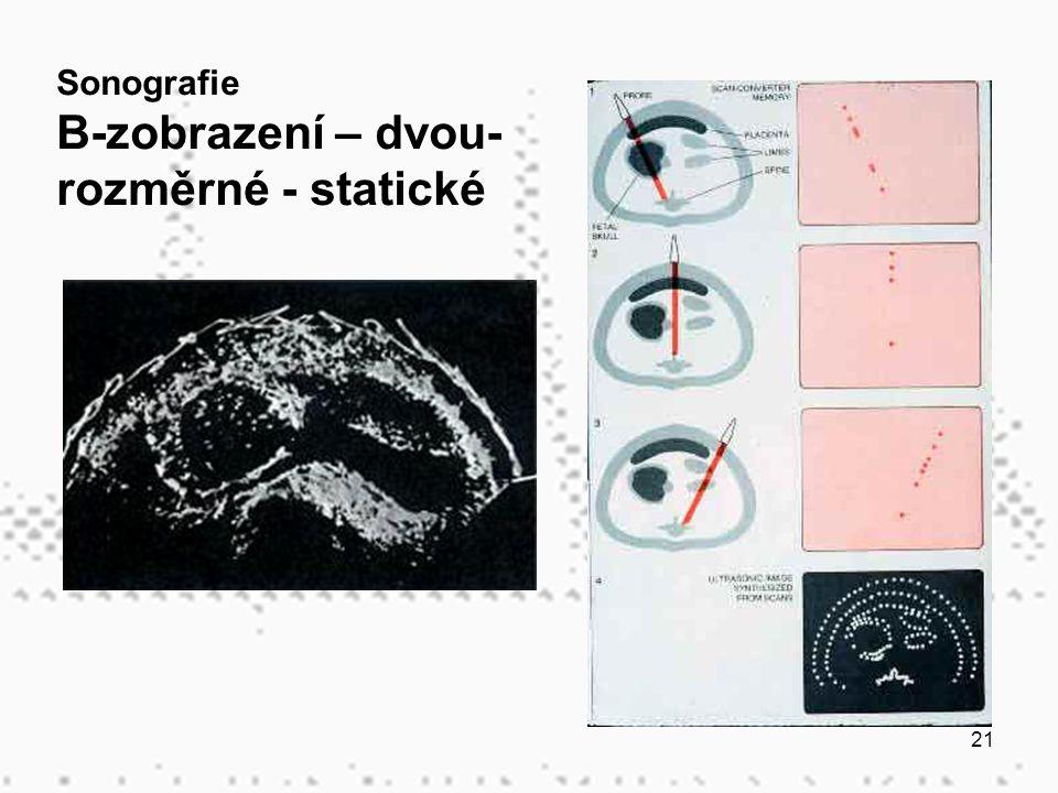 B-zobrazení – dvou-rozměrné - statické