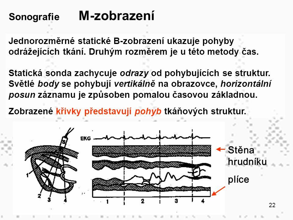 Sonografie M-zobrazení