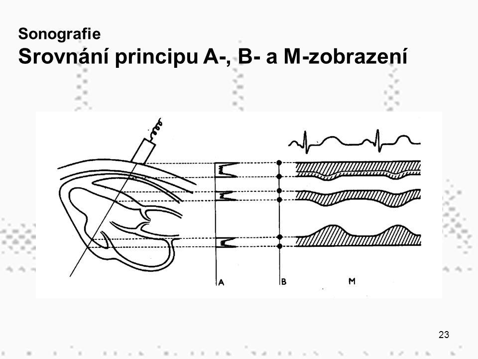 Srovnání principu A-, B- a M-zobrazení