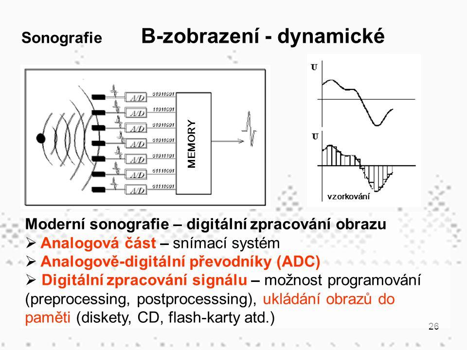 Sonografie B-zobrazení - dynamické