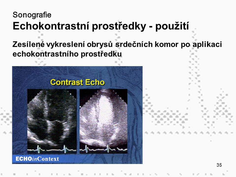 Sonografie Echokontrastní prostředky - použití