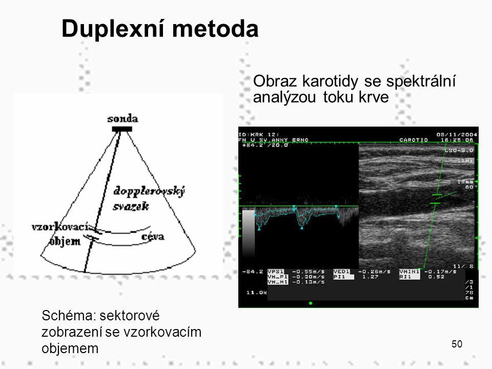 Duplexní metoda Obraz karotidy se spektrální analýzou toku krve