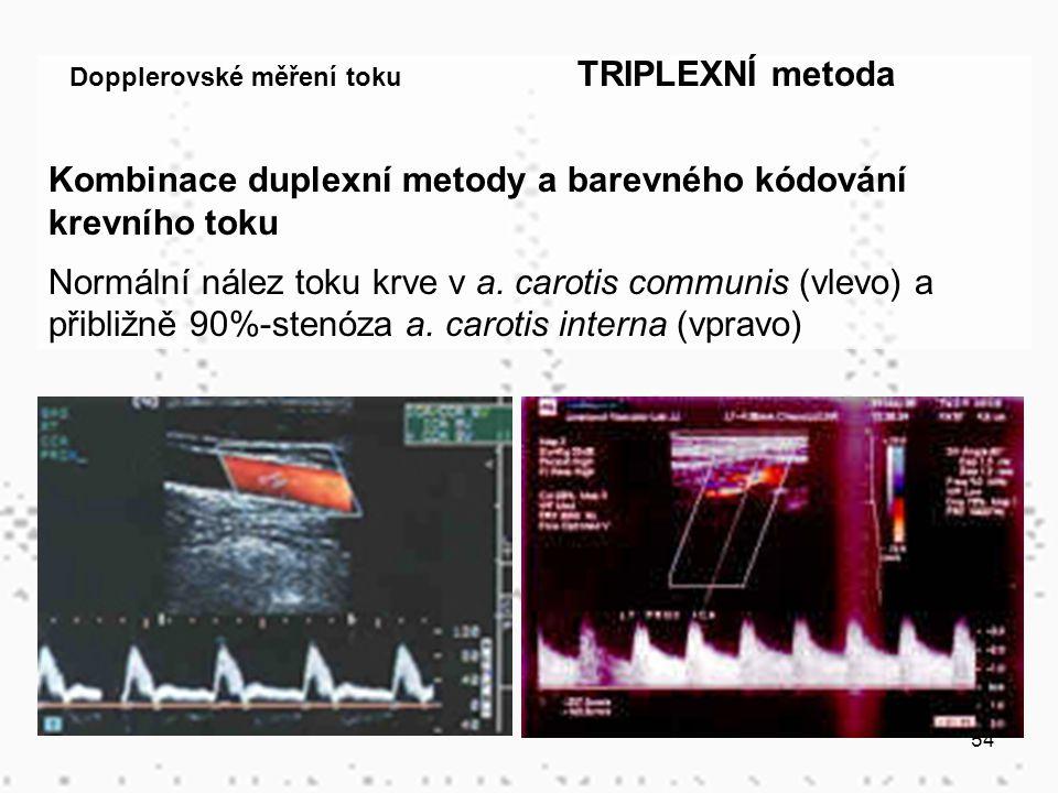 Kombinace duplexní metody a barevného kódování krevního toku