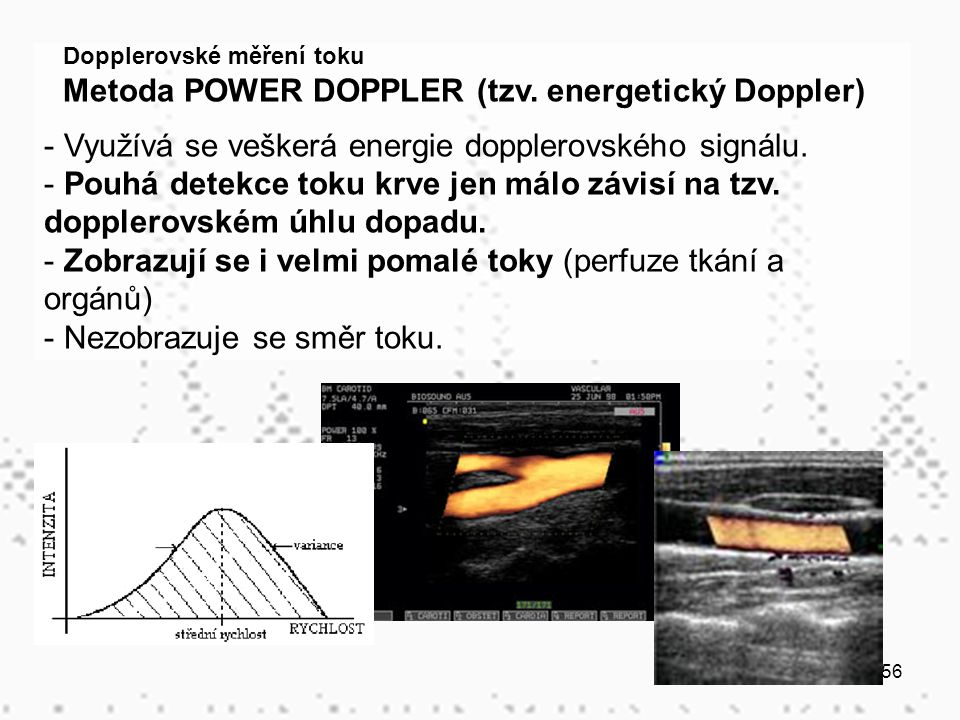 Metoda POWER DOPPLER (tzv. energetický Doppler)