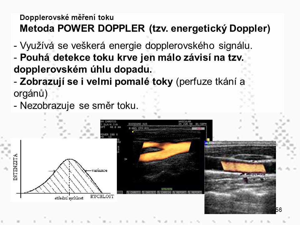 Metoda POWER DOPPLER (tzv. energetický Doppler)