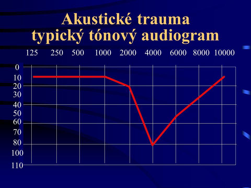 Akustické trauma typický tónový audiogram