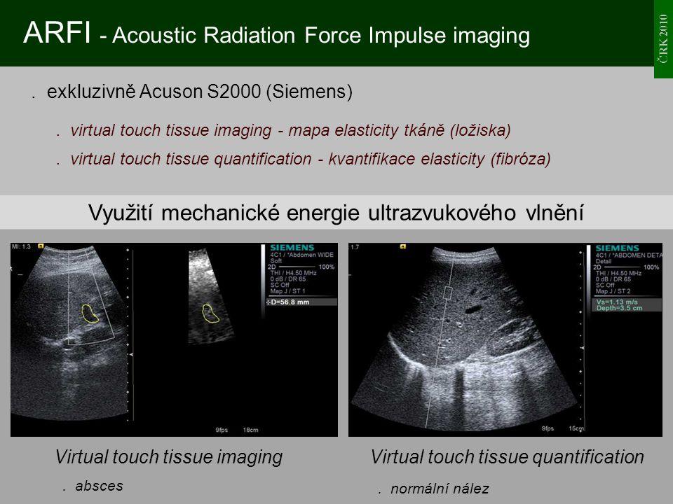 Využití mechanické energie ultrazvukového vlnění