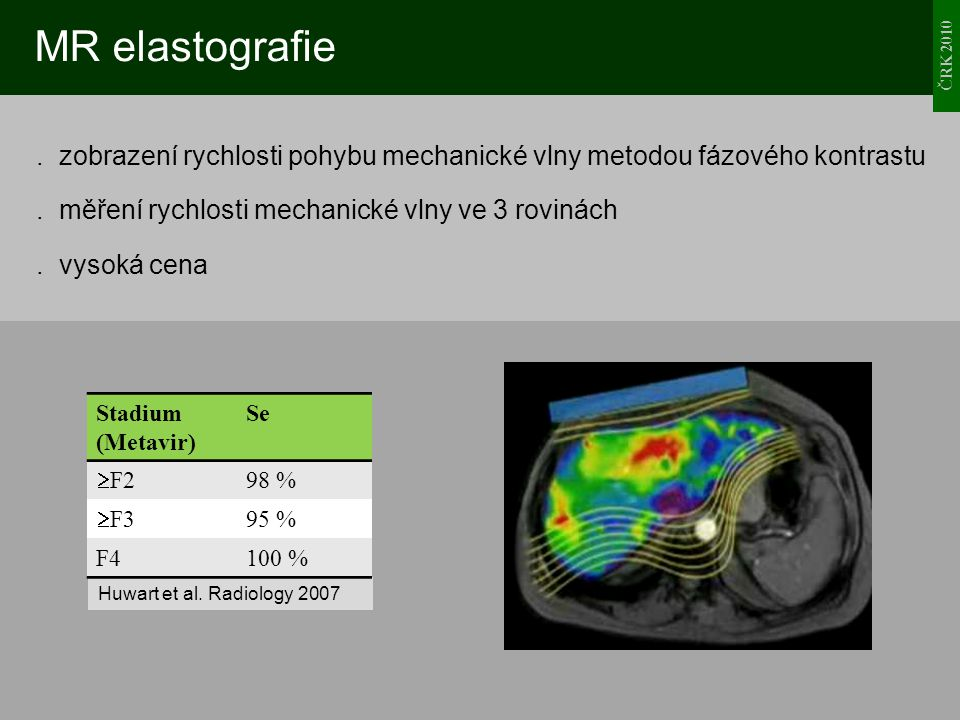 MR elastografie ČRK 2010.