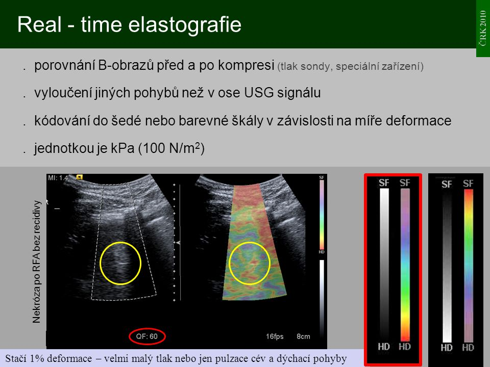 Real - time elastografie