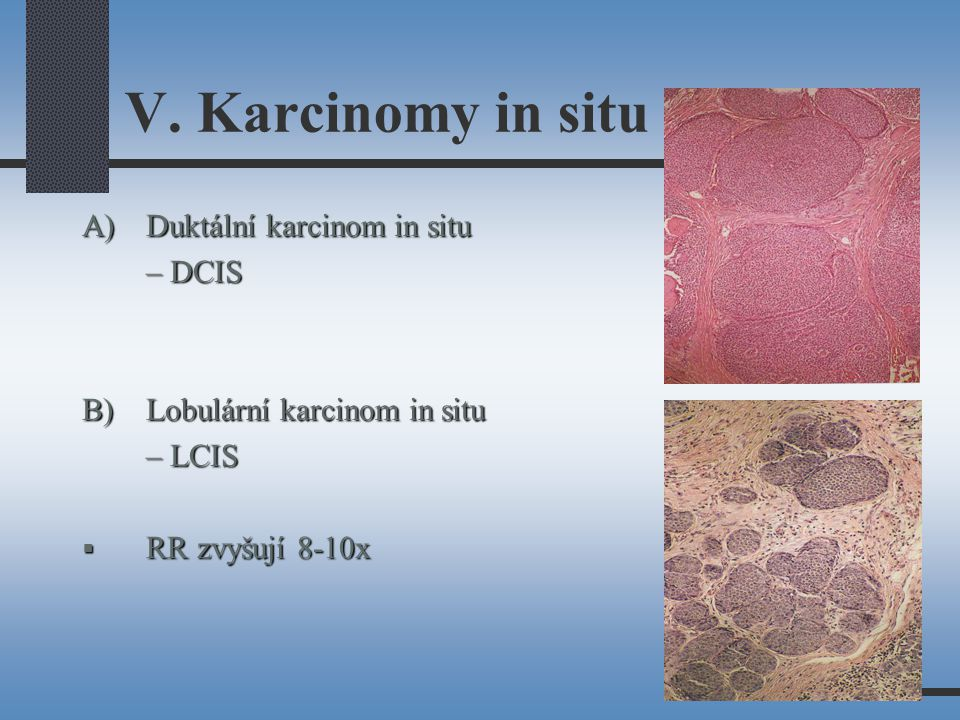 V. Karcinomy in situ A) Duktální karcinom in situ – DCIS