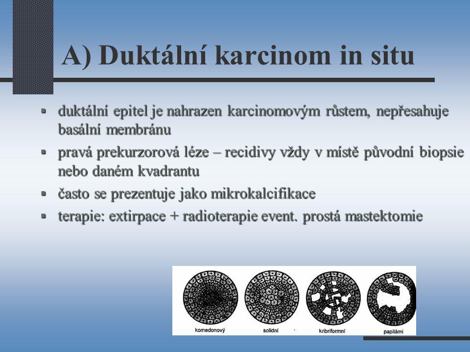 A) Duktální karcinom in situ