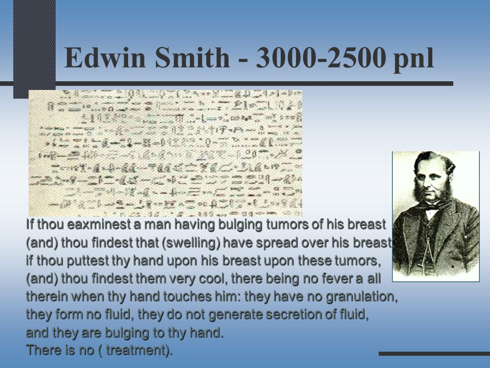 Edwin Smith - 3000-2500 pnl If thou eaxminest a man having bulging tumors of his breast.