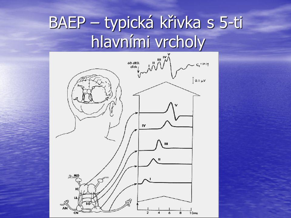 BAEP – typická křivka s 5-ti hlavními vrcholy