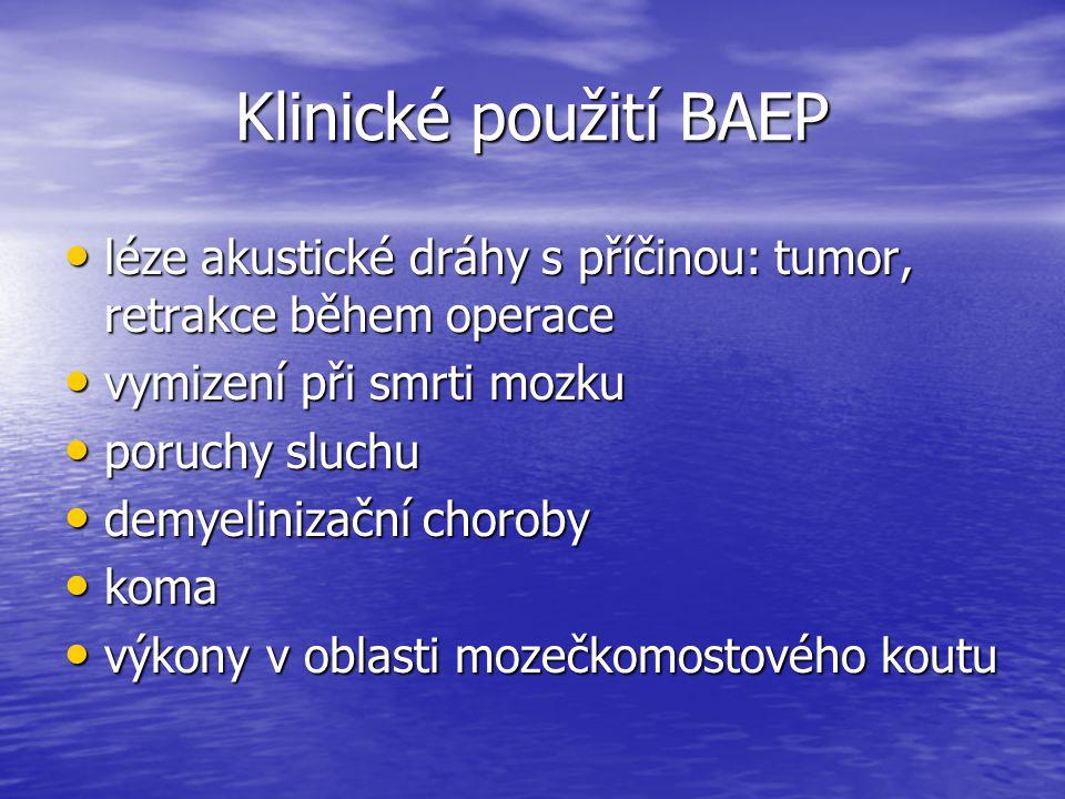 Klinické použití BAEP léze akustické dráhy s příčinou: tumor, retrakce během operace. vymizení při smrti mozku.